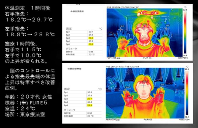 ひびきによる体温測定 B&A