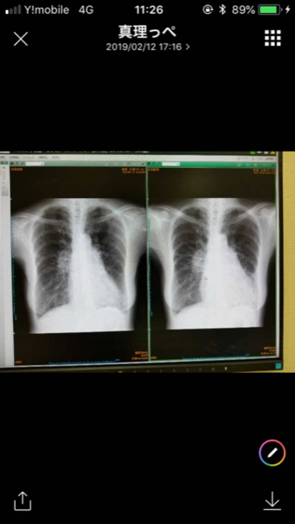 母の心不全、肺炎が3週間で畑仕事が出来るまでに回復、医師も驚く程に!